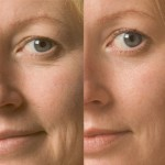 hyperbaric-before-after-close-up